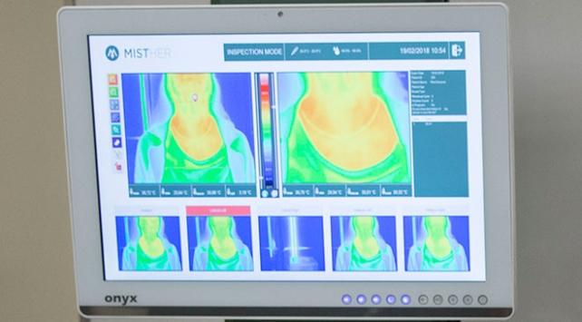 Kanserde 'kızılötesi' ile radyasyonsuz teşhis dönemi