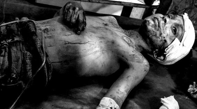 Doğu Guta'da son 18 günde 881 sivil hayatını kaybetti